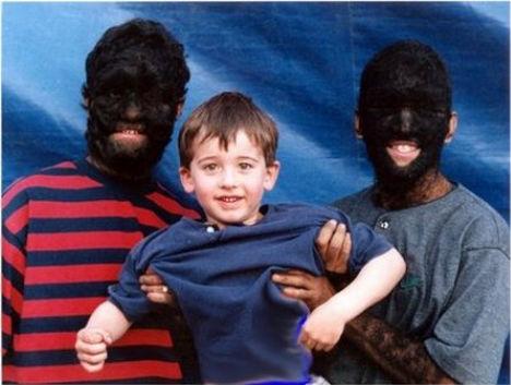 weird-diseases-human-werewolf